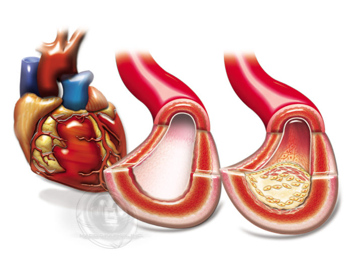 15 Heart With 2 Arteries Clear And Clogged