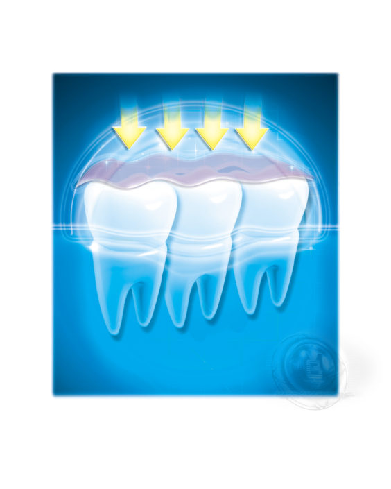 19 Blanketing Teeth With A Protective Shield